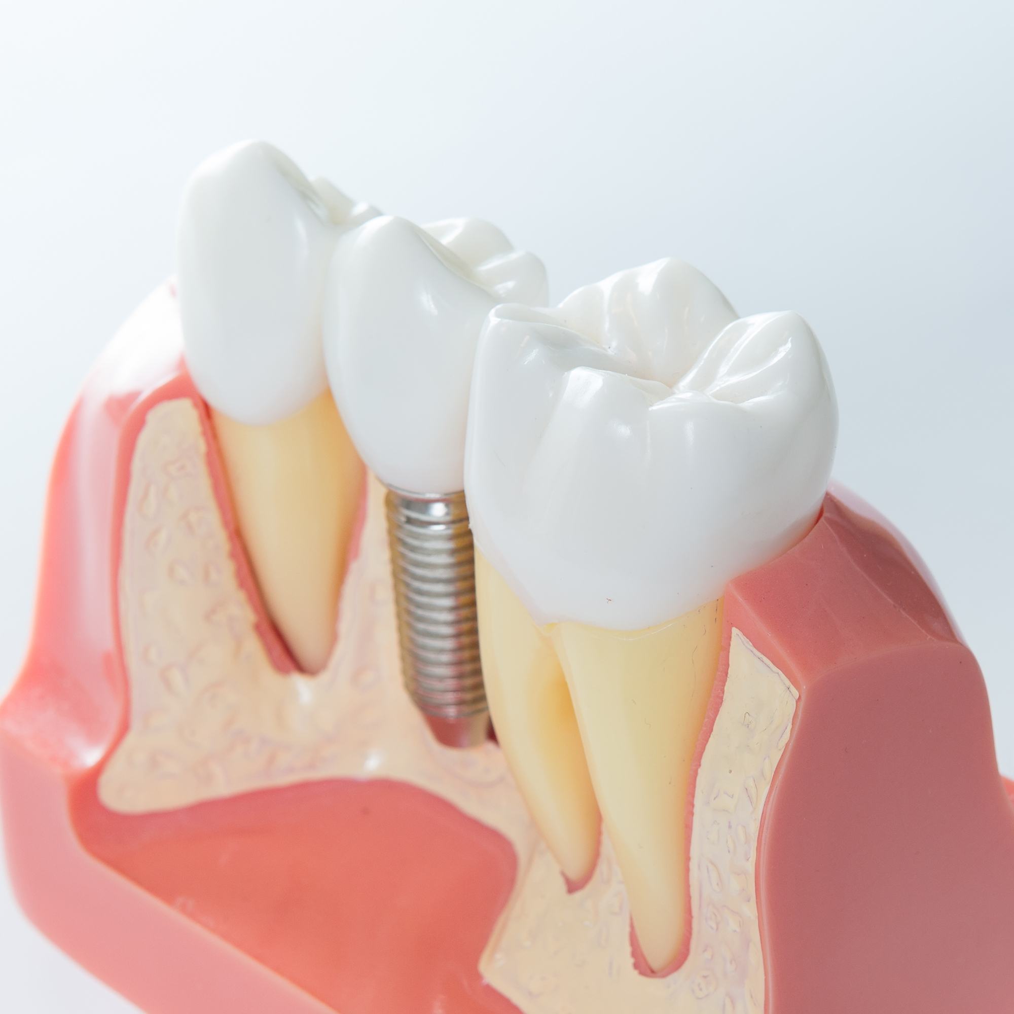 Close up of dental implant model showing the crown attached to the post, along with the surrounding natural teeth