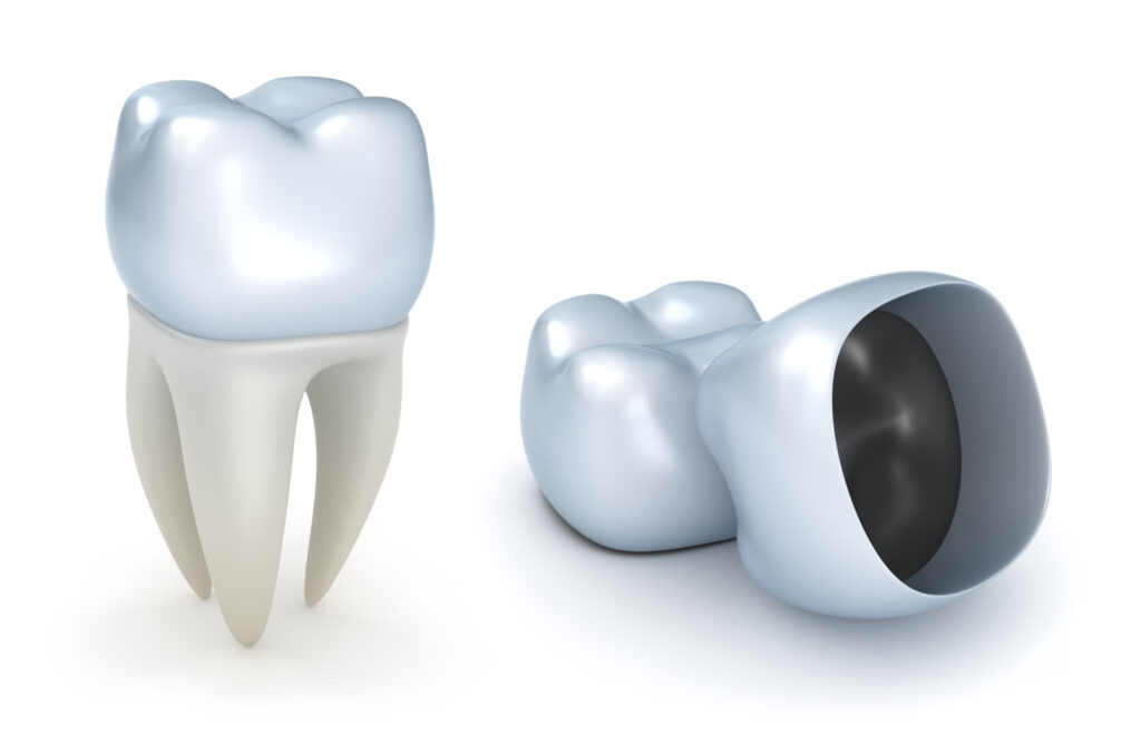 A Dental Crown Cap To Fit Over Existing Tooth